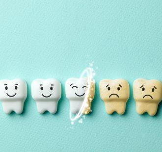 I dentifrici sbiancanti funzionano davvero?