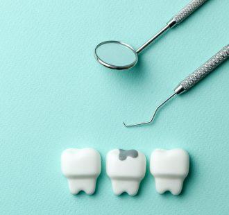 La carie dentale: tutto quello che devi sapere per evitare che si formi