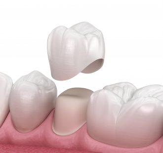 Cos'è una corona dentale e perché viene realizzata