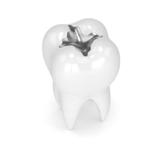 L'amalgama dentale è tossico: mito o realtà?