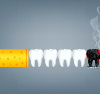 Il fumo e la salute delle gengive: un pericolo da non sottovalutare