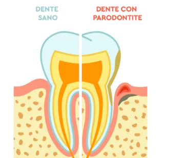 La parodontite: tutto quello che devi sapere