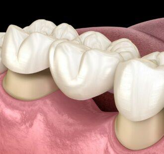 Il ponte dentale: tutto quello che devi sapere