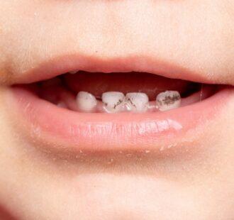 Le black stain: cosa sono queste macchie nere sui denti?