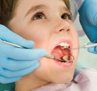 Ipomineralizzazione di molari e incisivi: una guida semplice