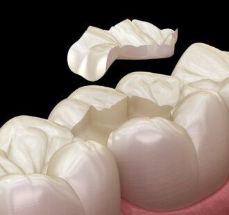 Il dentista ti ha consigliato un intarsio dentale? Ecco di cosa si tratta