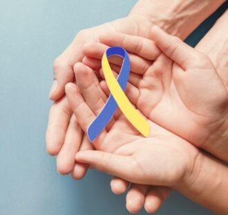 La sindrome di down: come proteggere la salute delle gengive?