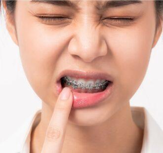 L'apparecchio e l'allergia al nichel: cosa devi sapere